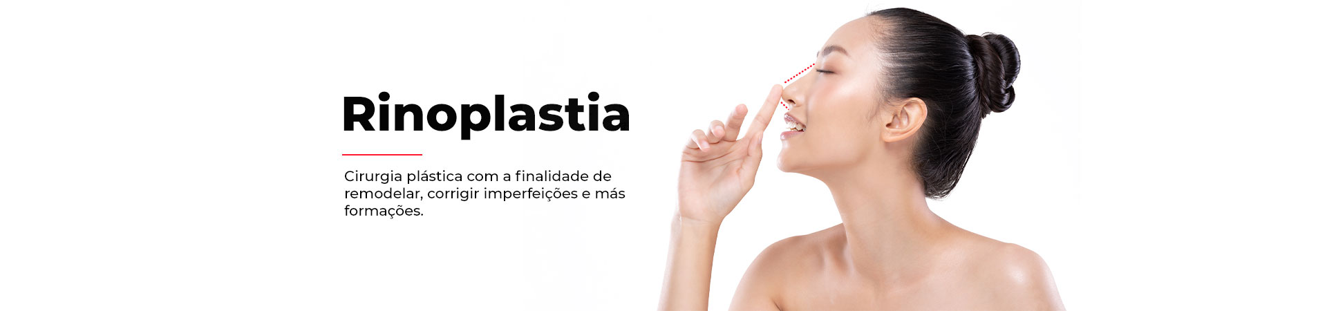 Rinoplastia-3