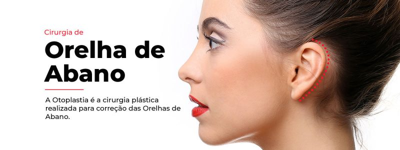 Orelha-de-Abano-2