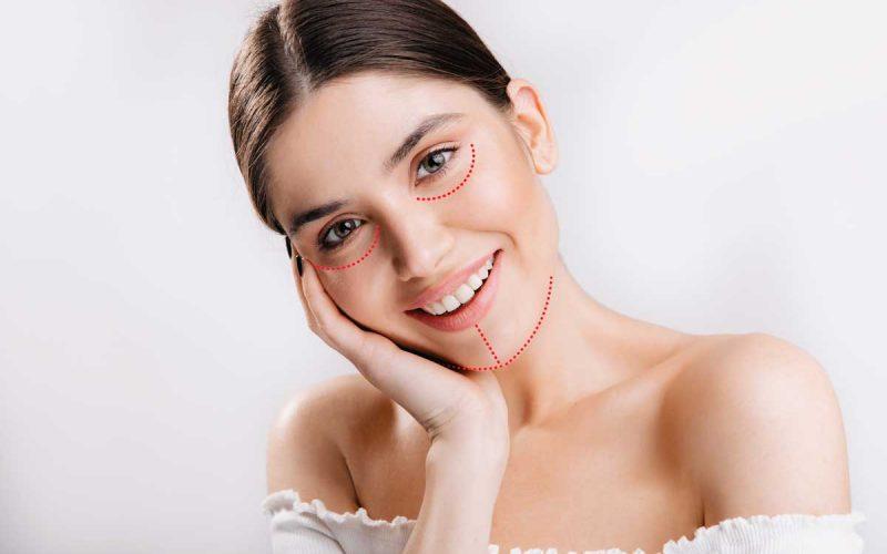 Ritidoplastia---Lifting-Facial